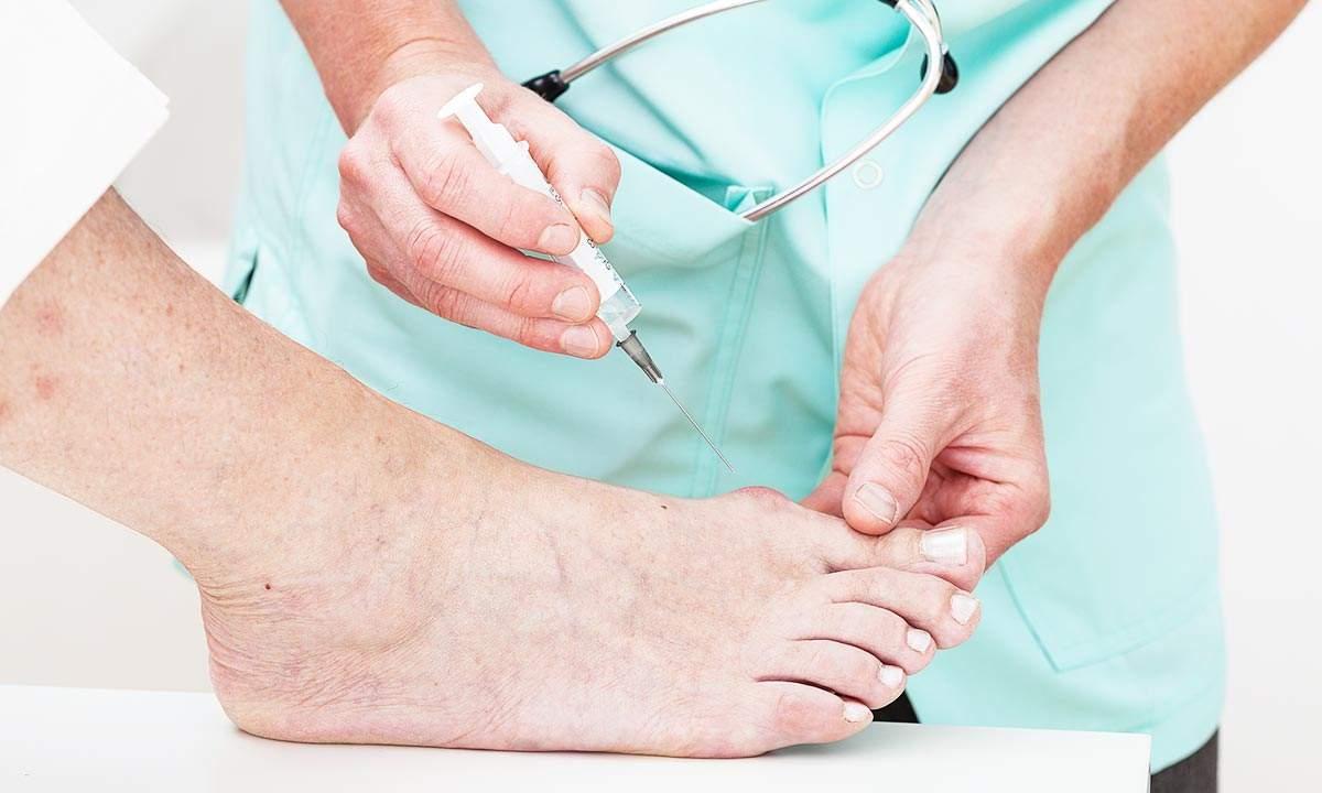 a0ce3c7266 Foto  Divulgação Pessoas com diabetes devem estar atentos as feridas que  surgem entre os dedos