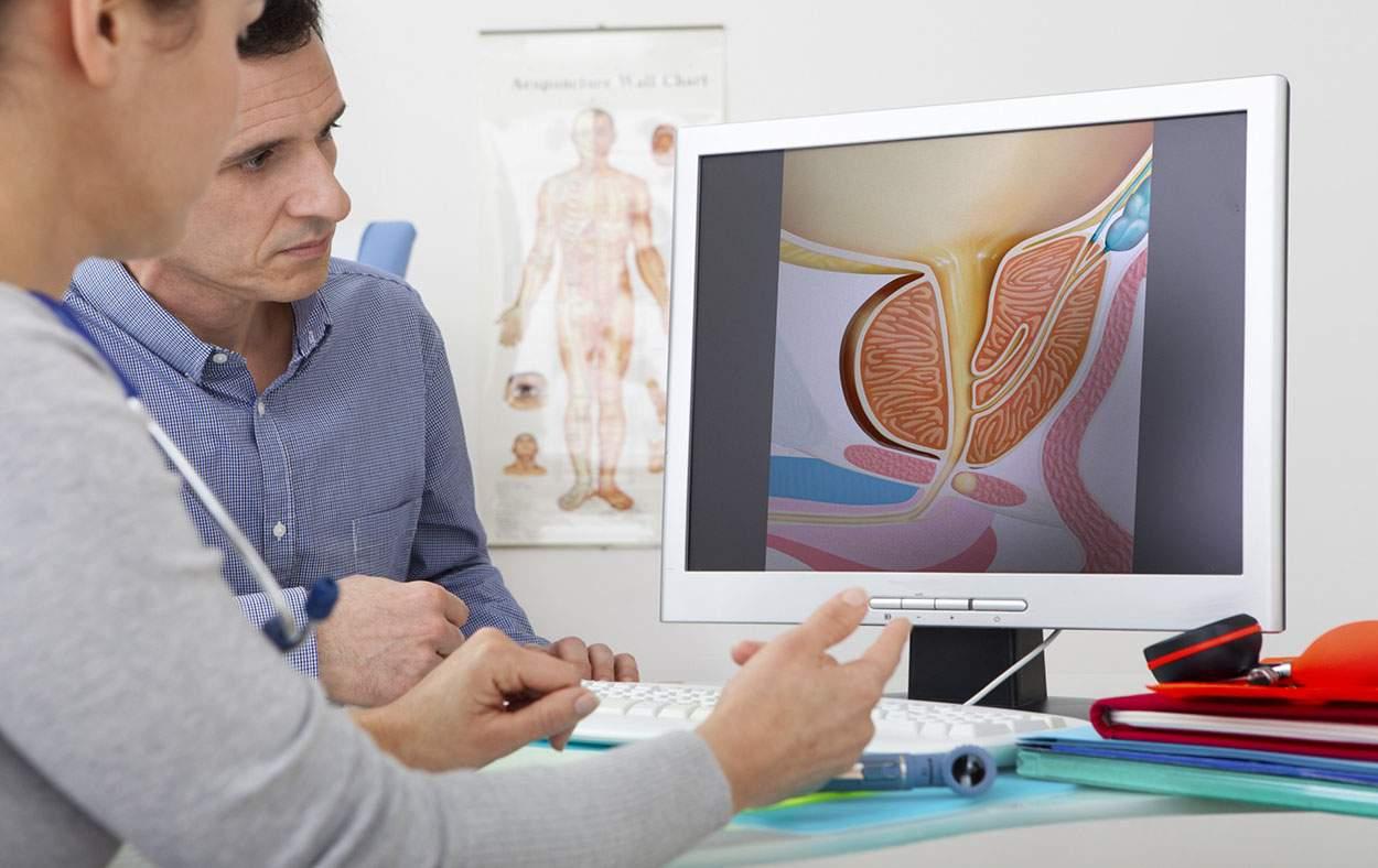 carcinoma prostatico terapia online